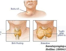 Triệu chứng của bệnh bướu cổ Basedow là gì?
