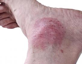 Vẩy nến ở chân là bệnh gì? Điều trị ra sao cho hiệu quả?