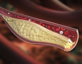 Điều trị rối loạn lipid máu như thế nào?