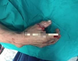 Nối lại thành công ngón tay cái đứt rời bằng kỹ thuật vi phẫu