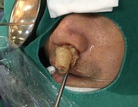 10 năm điếc ngửi, bác sĩ lôi ra thủ phạm chình ình trong mũi