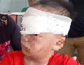 Bé trai 12 tuổi bị chó tấn công vào đầu, tai chấn thương nặng