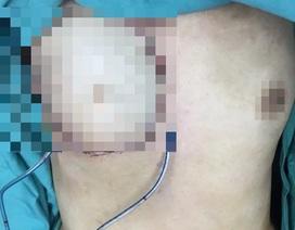 Ngực phải nữ bệnh nhân lở loét, chảy mủ vì đắp thuốc nam chữa ung thư vú