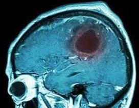 5 triệu chứng u não mà bạn không nên bỏ qua