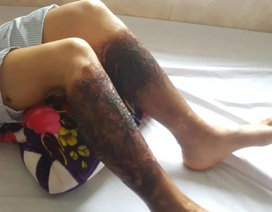 Công an điều tra nghi vấn người dân bỏng nặng hai chân sau khi lội mương