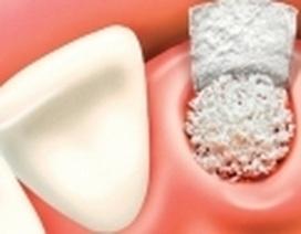 Nhổ răng khôn có nguy hiểm?
