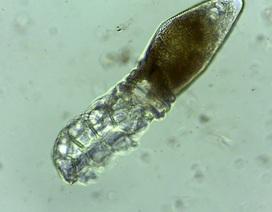 Phát hiện loài ve ký sinh siêu nhỏ trên mặt người