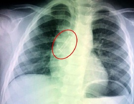 Mở quả trứng đồ chơi, bé trai bị lò xo bắn vào phổi