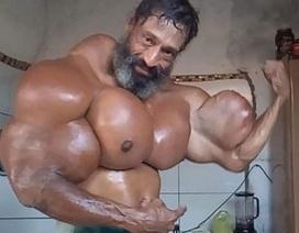 Tiêm dầu vào cơ thể, cơ bắp phồng như bóng, người đàn ông Brazil vẫn nghĩ mình… đẹp