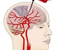 Đột quỵ não là gì? Cách cấp cứu tại chỗ khi gặp người bệnh ra sao?