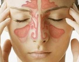 Có thuốc trị dứt điểm bệnh viêm xoang?
