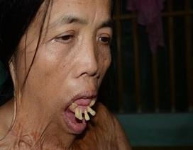 """Người đàn bà nửa thế kỉ mang hàm răng """"kì dị"""" và chưa một lần ngoái cổ"""