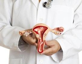 Vì sao Nga Phụ Khang lại có thể hỗ trợ điều trị u xơ tử cung không cần phẫu thuật?