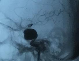 Đau đầu kéo dài, coi chừng phình mạch máu não