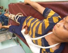 Bé trai 11 tuổi nghi bị hàng xóm đánh đập trọng thương