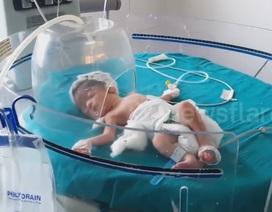 Clip bầy chó hoang cứu sống bé sơ sinh bị mẹ vất xuống cống khiến dân mạng cảm động