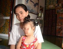 Hành trình tìm lại hy vọng cho cô bé có gương mặt dị dạng