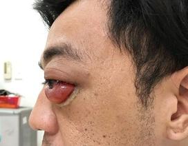 Chủ quan chấn thương sau tai nạn, bệnh nhân suýt mù mắt