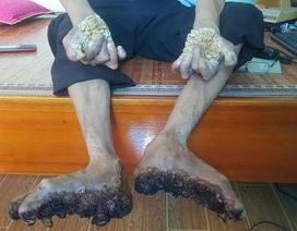 """Gặp người đầu tiên mắc căn bệnh kỳ lạ """"người cây"""" ở Việt Nam"""