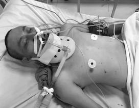 Quảng Bình: Người đàn ông không rõ danh tính gặp tai nạn khi đi bộ xuyên Việt đã tử vong