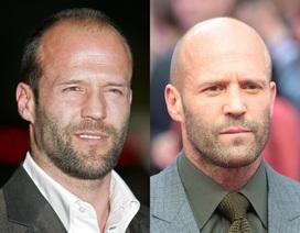 """Những nam diễn viên đẹp trai hơn với kiểu """"đầu trọc"""""""