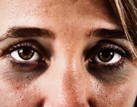 Quầng thâm dưới mắt: nguyên nhân và cách khắc phục