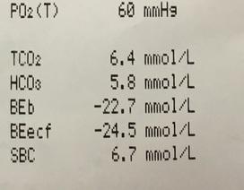 Nhập viện cấp cứu sau khi dùng 10 lít rượu liên tục trong 5 ngày không ăn uống