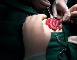 Bé sơ sinh 6 ngày tuổi được phát hiện xoắn ruột vì nôn trớ nhiều, đi ngoài ra máu