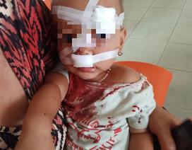 Vợ chồng cãi vã khiến con hai tuổi phải nhập viện cấp cứu