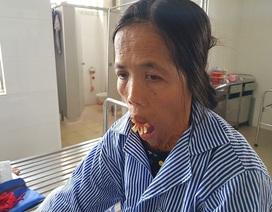 """Sau nửa thế kỉ, người đàn bà có hàm răng """"kỳ dị"""" rụt rè khi lần đầu nhập viện"""