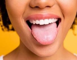 Sưng lưỡi là dấu hiệu của bệnh gì?