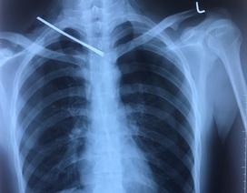 Cứu sống nam thanh niên bị cây sắt đâm xuyên phổi
