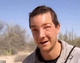 Chuyên gia sinh tồn Bear Grylls suýt mất mạng vì… ong đốt