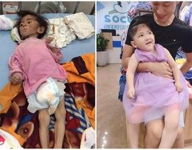 Sự thay đổi bất ngờ của em bé suy dinh dưỡng Lào Cai sau khi được nhận nuôi