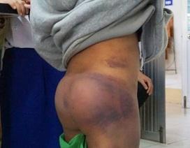Vụ 4 học sinh tiểu học nghi bị bạo hành: Do ông nội đánh