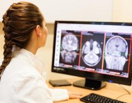 Những điều cần biết về phình mạch não