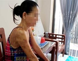 Khởi tố vụ người phụ nữ tạt chảo dầu đang chiên vào hàng xóm