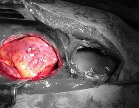 Cưa xương ức cứu bệnh nhân bị đâm thấu tim, xuyên gan