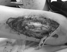 Nữ cổ động viên dính pháo sáng tại sân Hàng Đẫy tổn thương sâu, lộ xương đùi