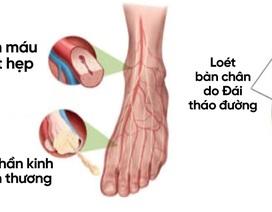 Đái tháo đường: Cách hỗ trợ phòng và giảm tê bì chân tay nguy cơ loét bàn chân