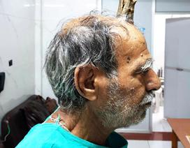 """""""Sừng quỷ"""" 10cm mọc ra từ đỉnh đầu cụ ông 74 tuổi"""