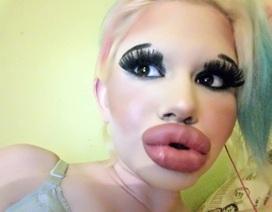 Cô gái 15 lần bơm môi, sưng phồng như ong đốt vẫn muốn to thêm nữa