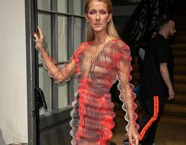 Celine Dion lên tiếng khi bị chỉ trích quá gày