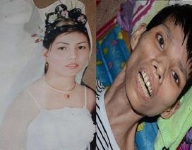 Sự sống mong manh của cô gái trẻ mắc căn bệnh hiếm gặp