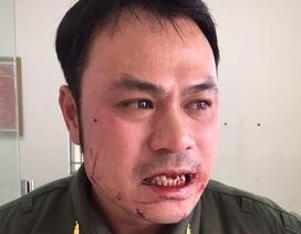 Nhân viên an ninh sân bay Nội Bài bị đối tượng cò mồi taxi dù hành hung