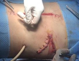 Tai nạn giao thông, nạn nhân nguy kịch vì vỡ nhiều nội tạng