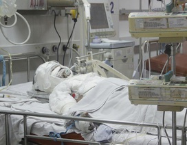 Nhiều trẻ tử vong, nguy kịch vì bỏng do người lớn sơ ý