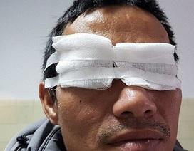 """Một nam giới đối mặt với nguy cơ mù mắt phải vì """"chơi"""" pháo hoa dịp lễ tết"""
