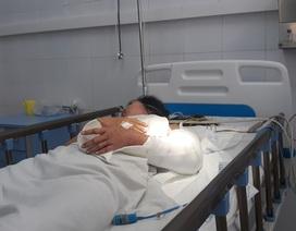 Cánh tay được nối liền của nữ sinh trong vụ rơi xe ở đèo Hải Vân đang phục hồi