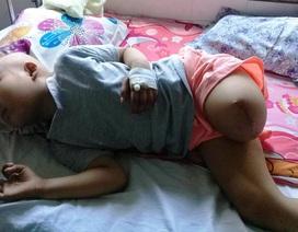 Ước mơ đến trường của cô bé mất 1 chân vì bệnh ung thư
